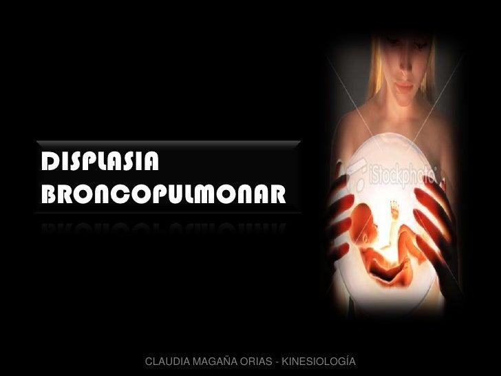 DISPLASIA BRONCOPULMONAR<br />CLAUDIA MAGAÑA ORIAS - KINESIOLOGÍA<br />