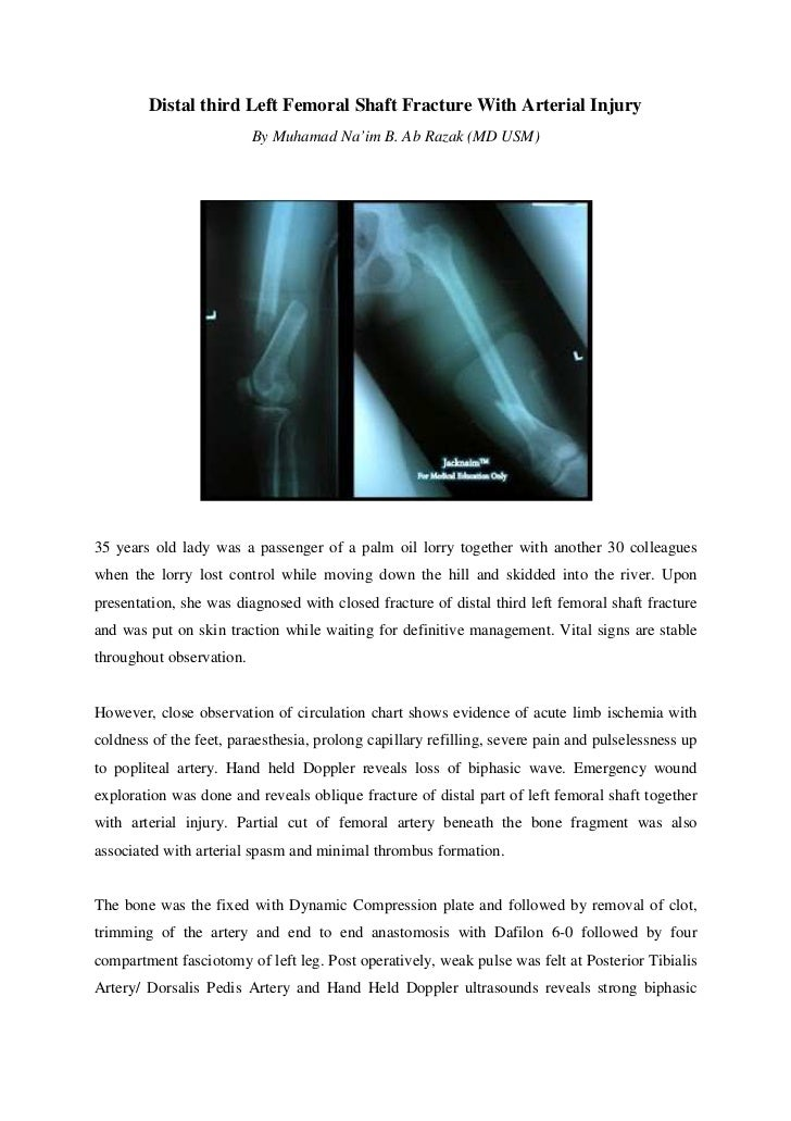 Distal third left femoral shaft fracture with arterial injury