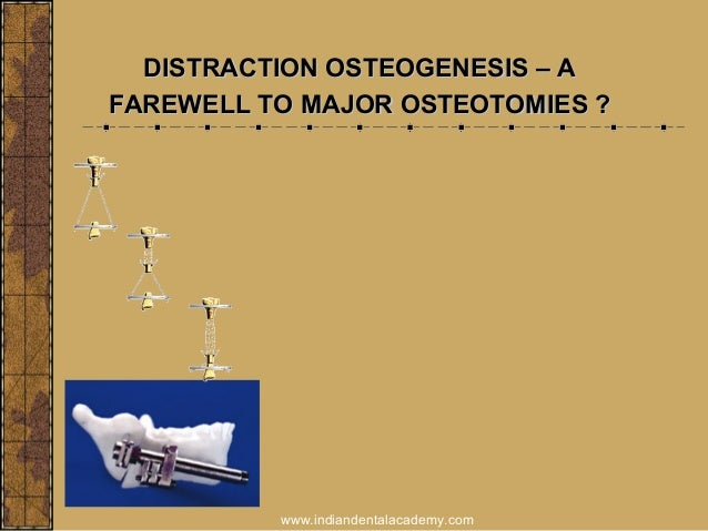 DISTRACTION OSTEOGENESIS – A FAREWELL TO MAJOR OSTEOTOMIES ?  www.indiandentalacademy.com
