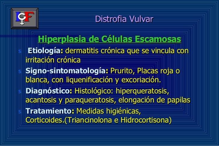 Irritacion vulvar