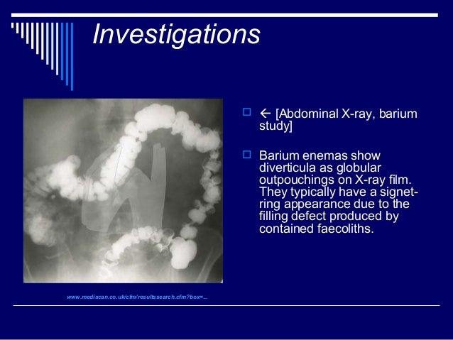 Double contrast barium enema
