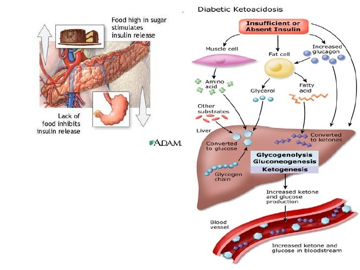 Why no diabetic ketoacidosis in type 2
