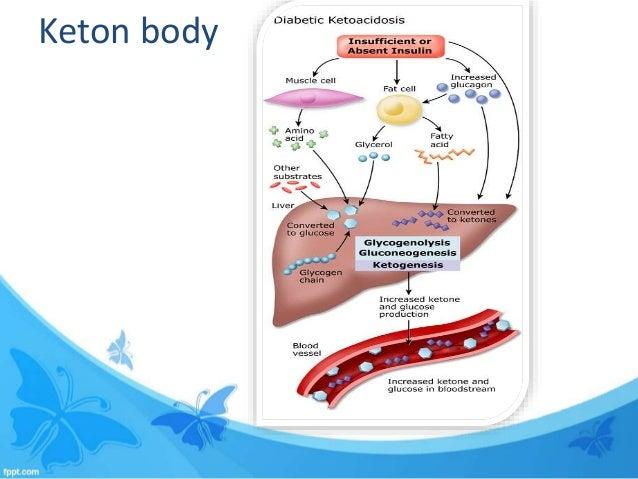 diabetic ketoacidosis case study
