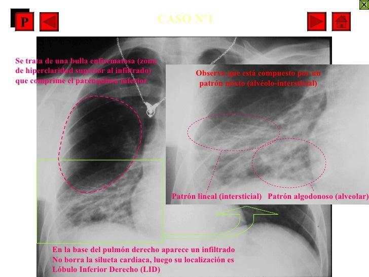 CASO Nº1 En la base del pulmón derecho aparece un infiltrado  No borra la silueta cardiaca, luego su localización es Lóbul...