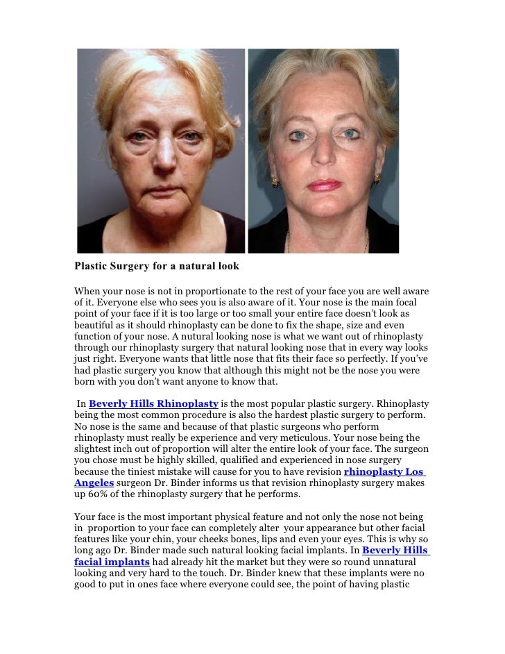 Plastic Surgery for a natural look  When your nose is not in proportionate to the rest of your face you are well aware of ...