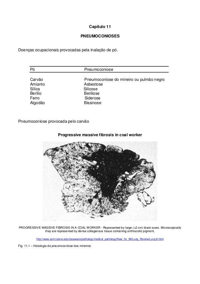 Capítulo 11PNEUMOCONIOSESDoenças ocupacionais provocadas pela inalação de pó.Pó PneumoconioseCarvão Pneumoconiose do minei...
