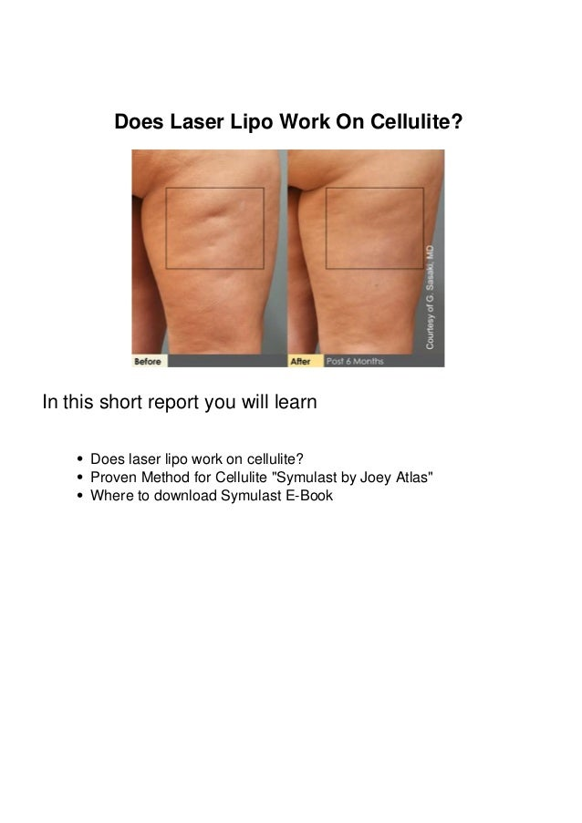 Does Laser Lipo Work On Cellulite