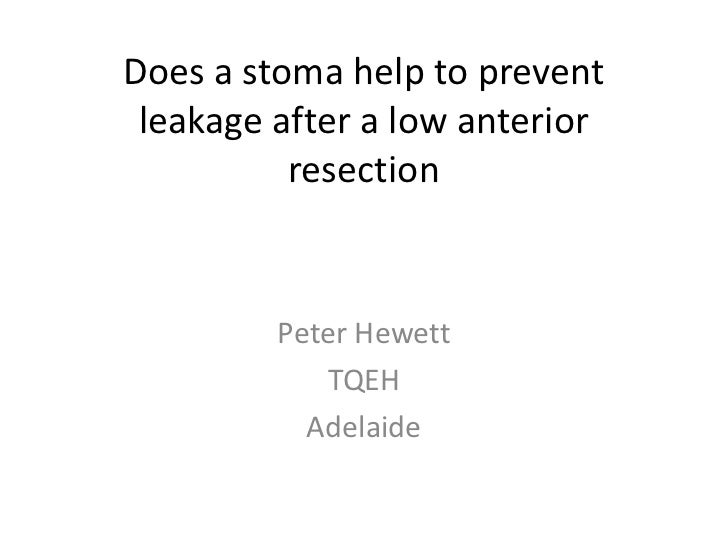 Does a stoma help to prevent leakage after a low anterior resection<br />Peter Hewett<br />TQEH<br />Adelaide<br />