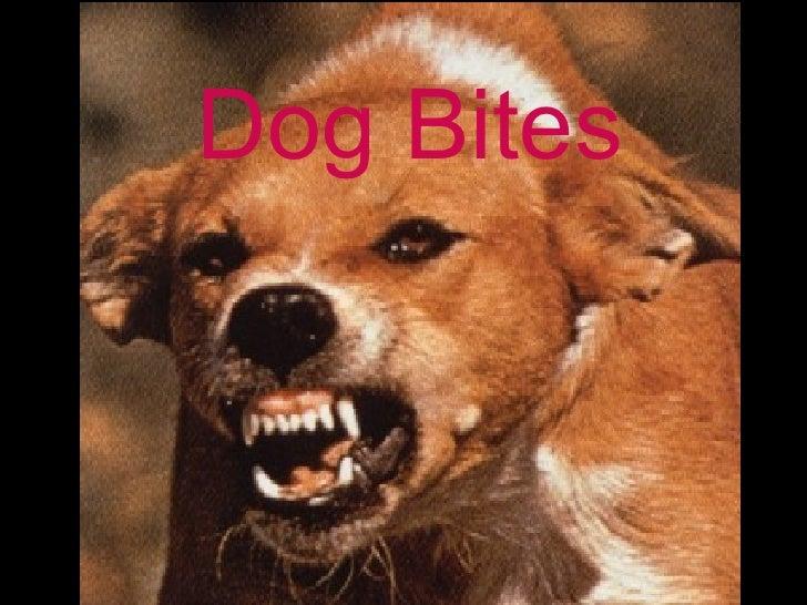 Dog Bites