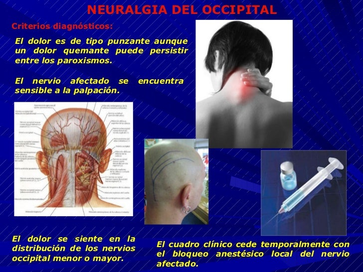 occipital neuralgia steroid injection