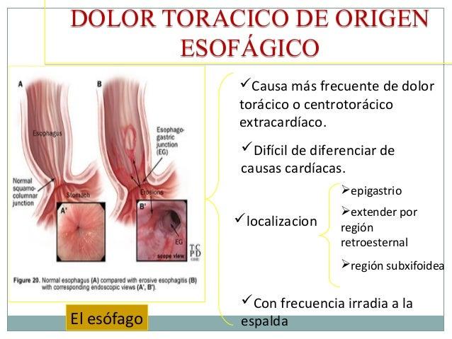 El tratamiento de la agudización de la osteocondrosis del departamento de pecho