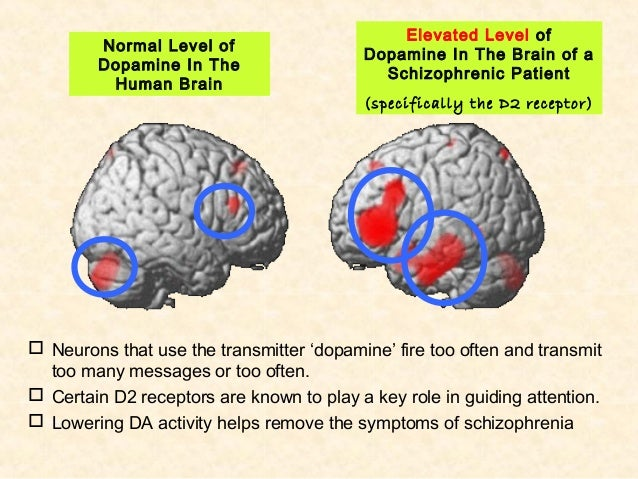 dopamine hypthesis Implications of the dopamine hypothesis of schizophrenia: version iii the hypothesis that the final common pathway is presynaptic dopamine dysregulation has some.