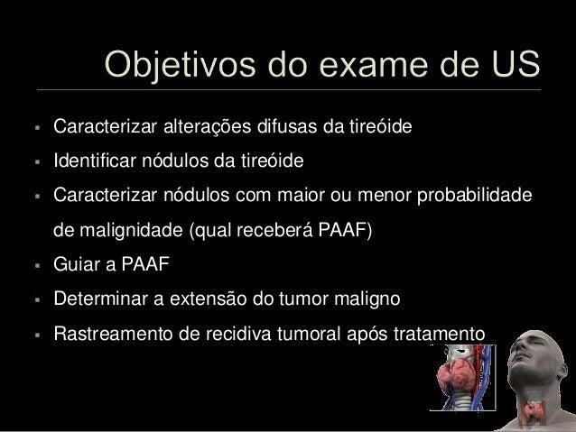 Exame tireoide