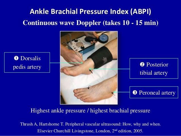 Doppler ultrasound of lower limb arteries