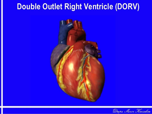 Double Outlet Right Ventricle (DORV)