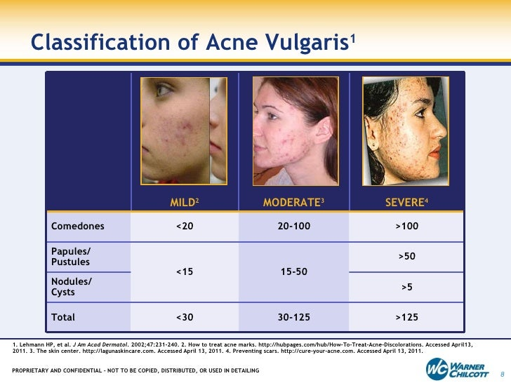 moderate acne scars