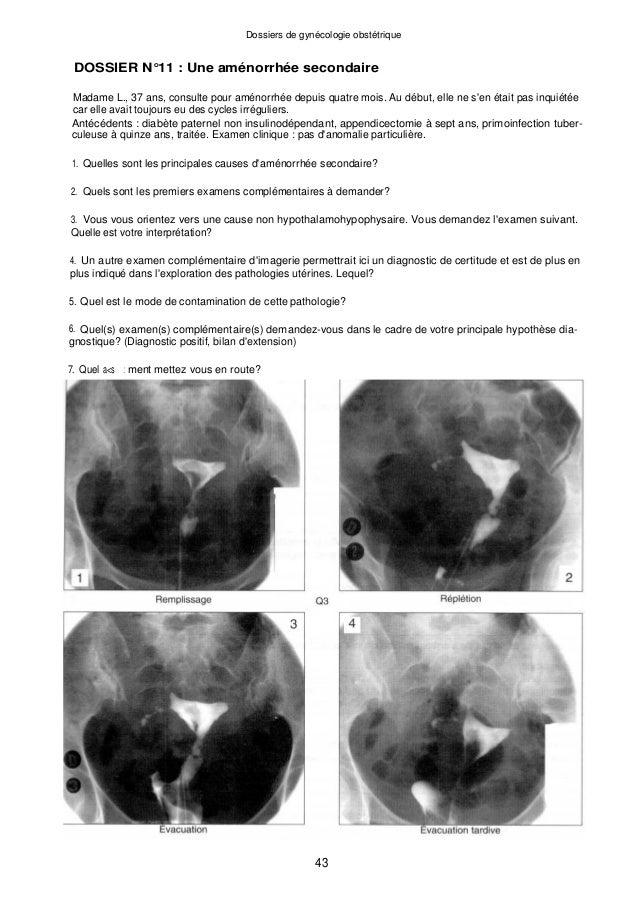 Dossiers de gynécologie obstétrique DOSSIER N°11 : Une aménorrhée secondaire Madame L., 37 ans, consulte pour aménorrhée d...