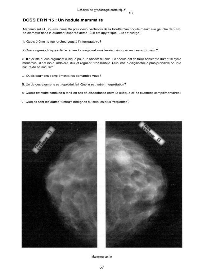 Dossiers de gynécologie obstétrique X J( DOSSIER N°15 : Un nodule mammaire Mademoiselle L, 29 ans, consulte pour découvert...