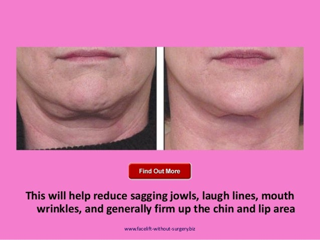 Remove Slack Second Chin Using Double Chin Exercises And ...