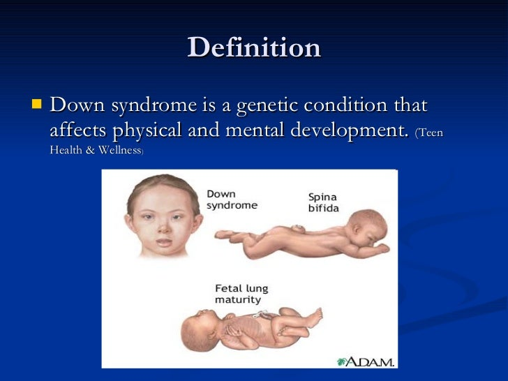 the description of the causes symptoms and treatment of downs syndrome Description down syndrome is a chromosomal condition that is associated with intellectual disability  which causes down syndrome.
