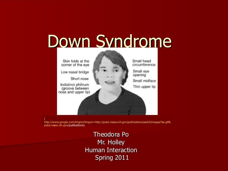 Down Syndrome  Theodora Po  Mr. Holley  Human Interaction  Spring 2011 ( http://www.google.com/imgres?imgurl=http://pubs.n...