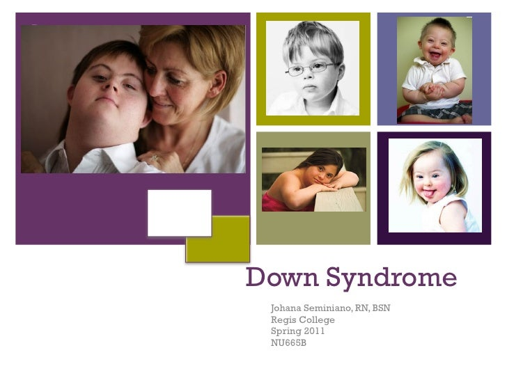 Care of Pediatric Down Syndrome
