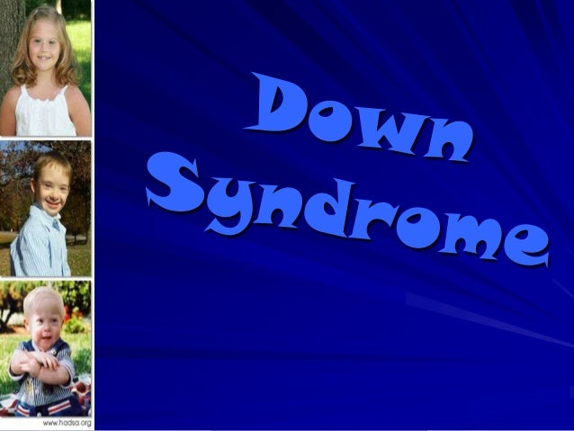 """Definition of Down SyndromeDown syndrome is a chromosomaldisorder caused by an additional (third)chromosome 21, or """"trisom..."""