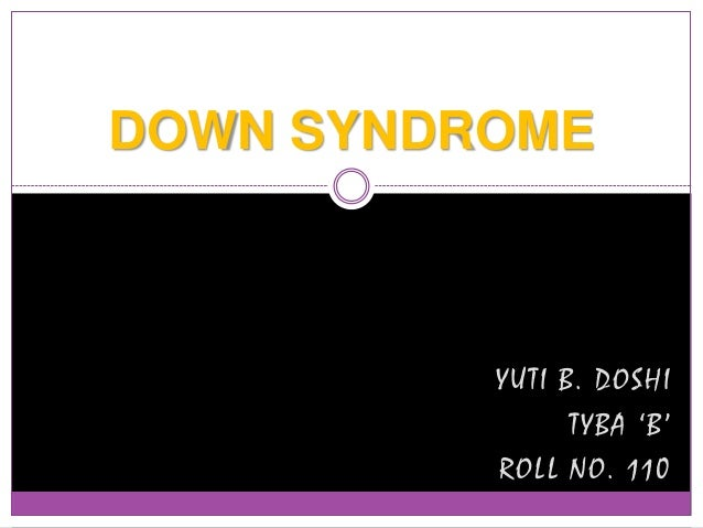 DOWN SYNDROME  YUTI B. DOSHI TYBA 'B' ROLL NO. 110