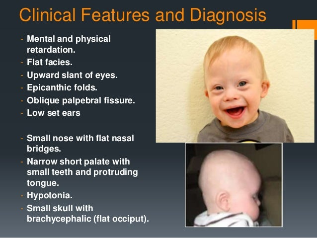 Characteristics of Down Syndrome Physical Features