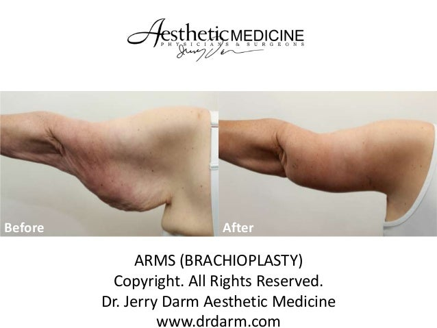 Before  After  ARMS (BRACHIOPLASTY) Copyright. All Rights Reserved. Dr. Jerry Darm Aesthetic Medicine www.drdarm.com