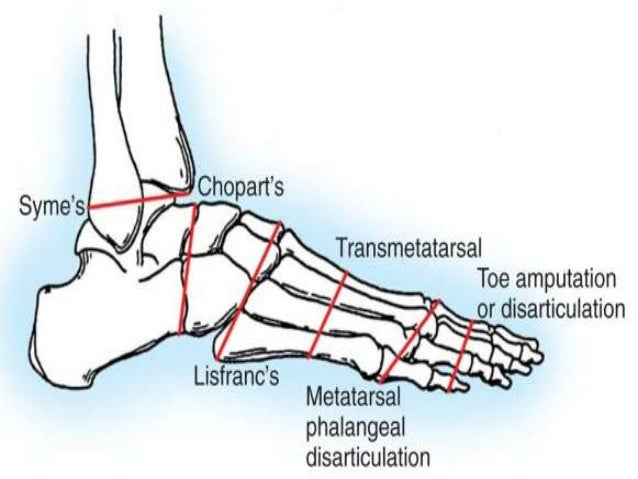 The Charcot Foot in Diabetes  Diabetes Care