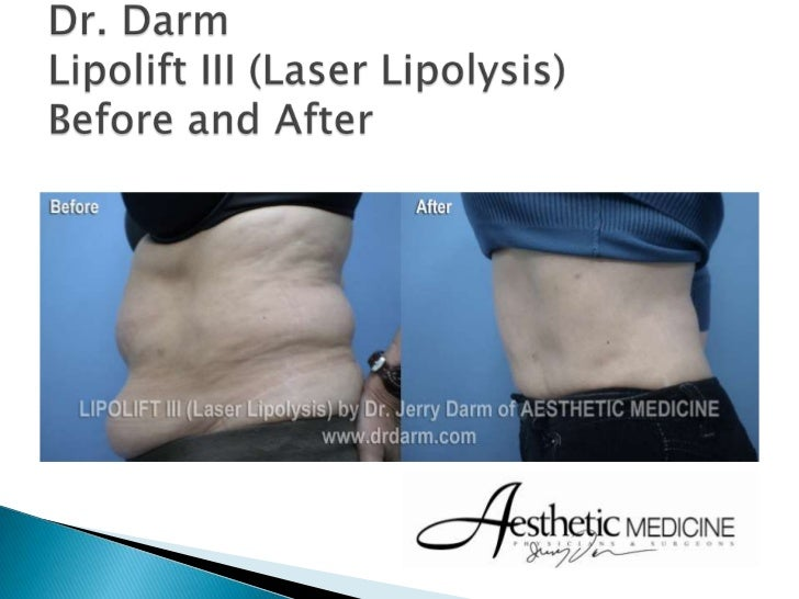 Dr. Darm Lipolift III Before And After Presentation