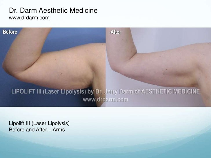 Dr. Darm Aesthetic Medicine<br />www.drdarm.com<br />Lipolift III (Laser Lipolysis)<br />Before and After – Arms<br />