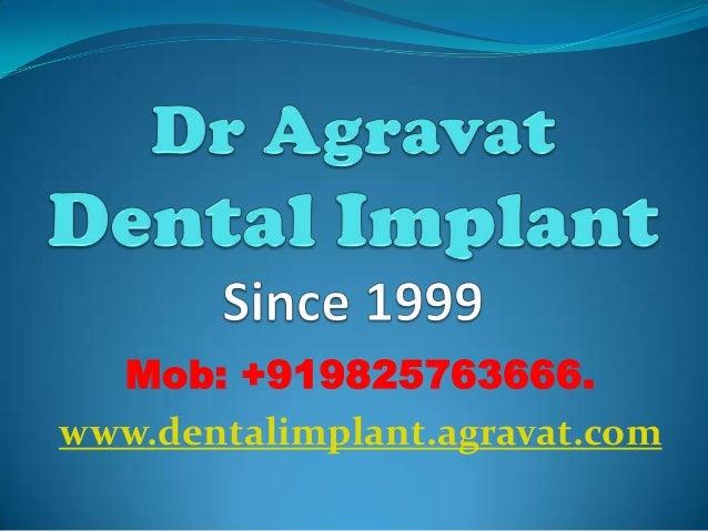 Mob: +919825763666. www.dentalimplant.agravat.com