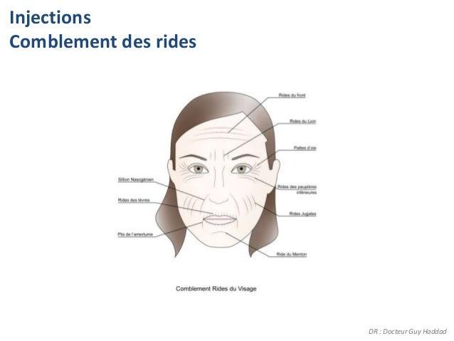 InjectionsComblement des rides                       DR : Docteur Guy Haddad