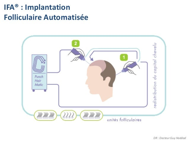 IFA® : ImplantationFolliculaire Automatisée                           DR : Docteur Guy Haddad