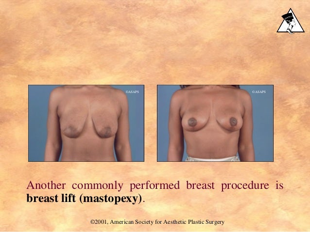 Another commonly performed breast procedure is breast lift (mastopexy). ©2001, American Society for Aesthetic Plastic Surg...