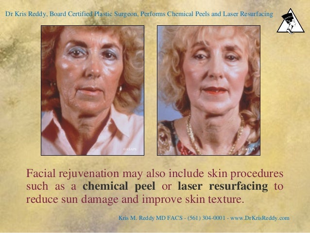 Facial rejuvenation may also include skin procedures such as a chemical peel or laser resurfacing to reduce sun damage and...