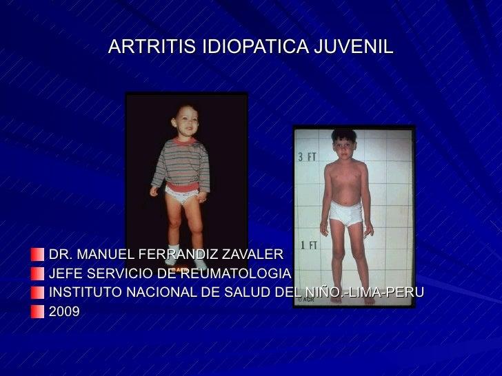 ARTRITIS IDIOPATICA JUVENIL <ul><li>DR. MANUEL FERRANDIZ ZAVALER  </li></ul><ul><li>JEFE SERVICIO DE REUMATOLOGIA </li></u...