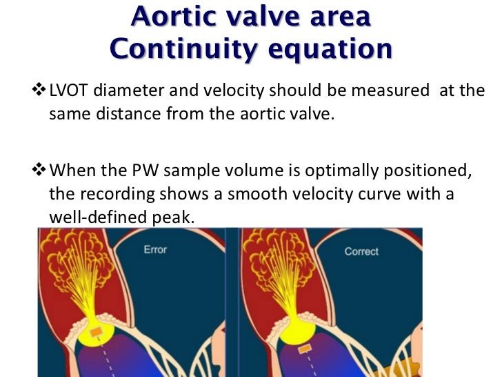 Echocardiographic assessment of valve stenosis EAEASE