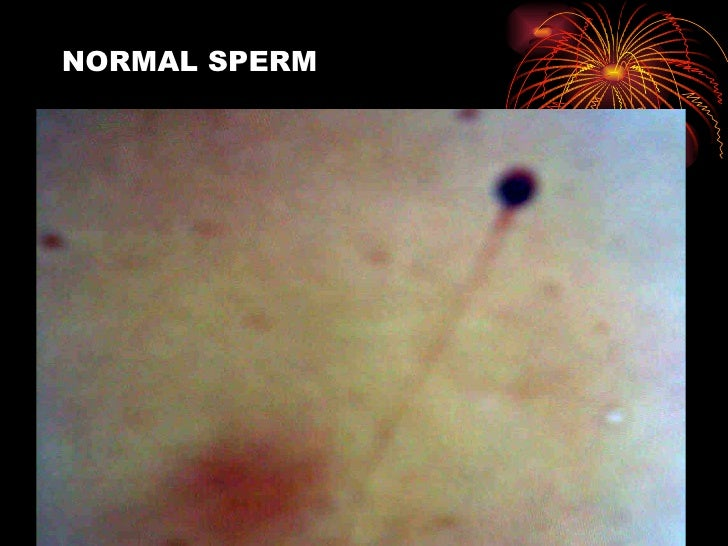 slight abnormality in sperm