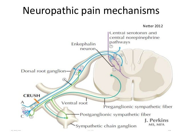 Neuropathic Pain Mechanism 11 Neuropathic Pain