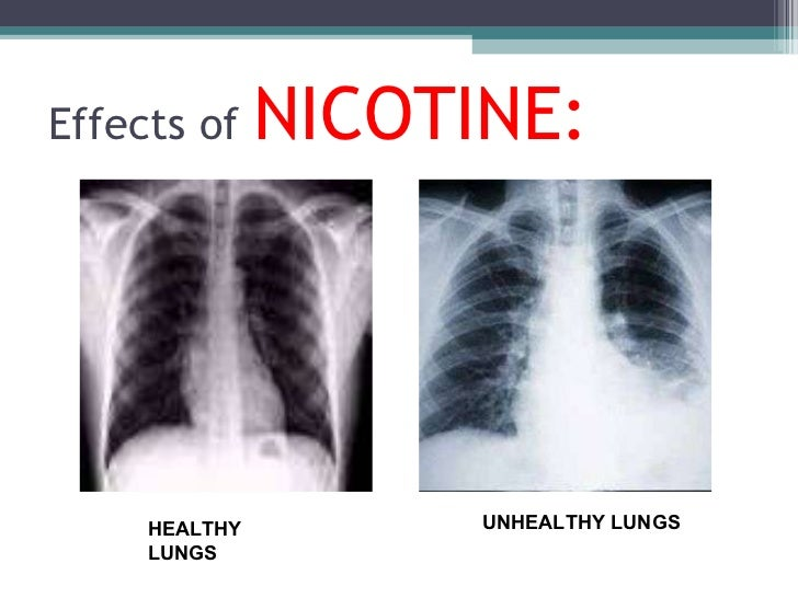 Image Gallery nicotine effect on lungs