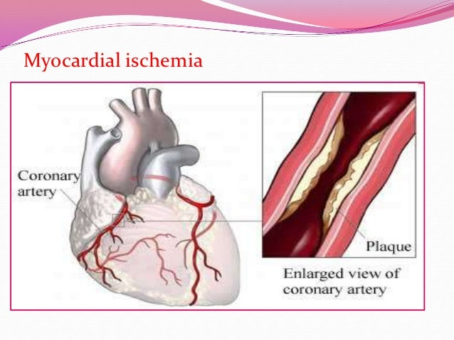 angina is caused by