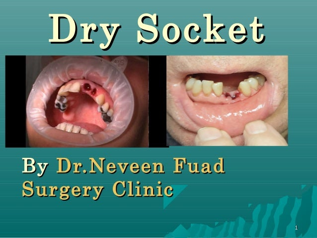 how to get rid of dry socket in mouth