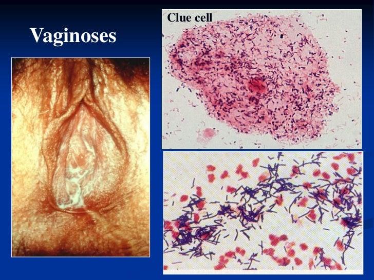 Нужно ли лечить стафилококк во влагалище объясните