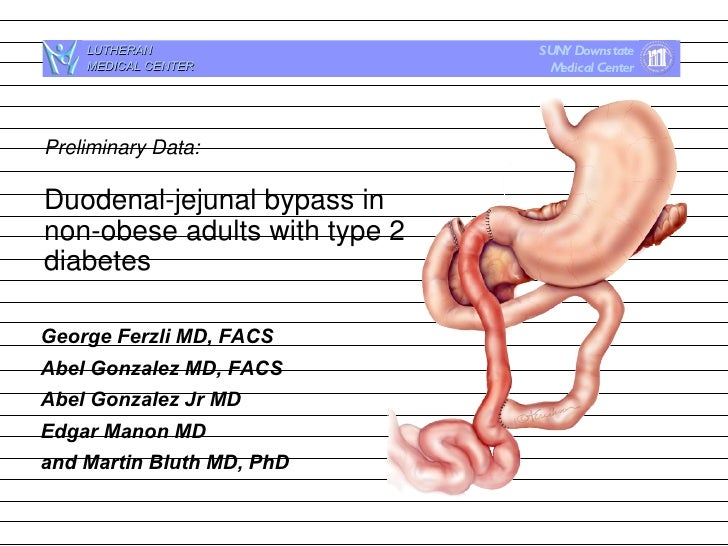 Duodenal-jejeunal Bypass in Non-obese Adults with Type 2 Diabetes