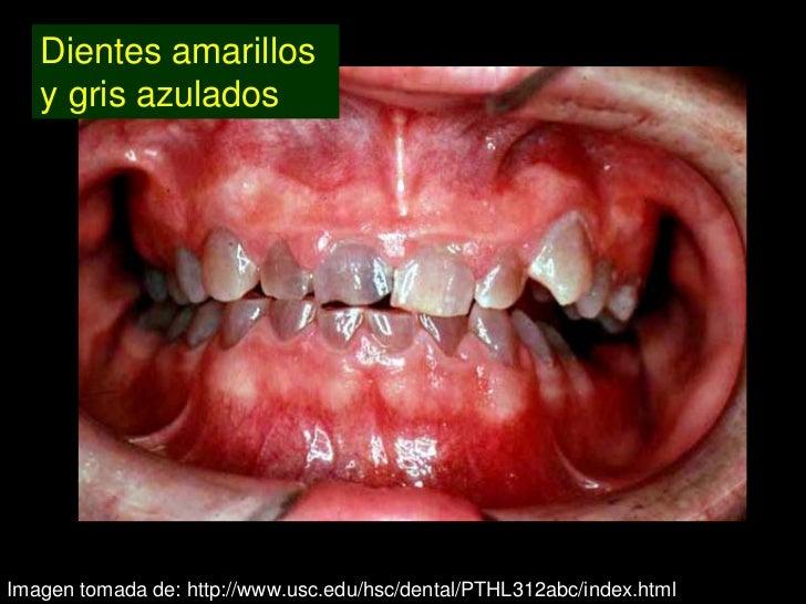 dentinog u00e9nesis imperfecta