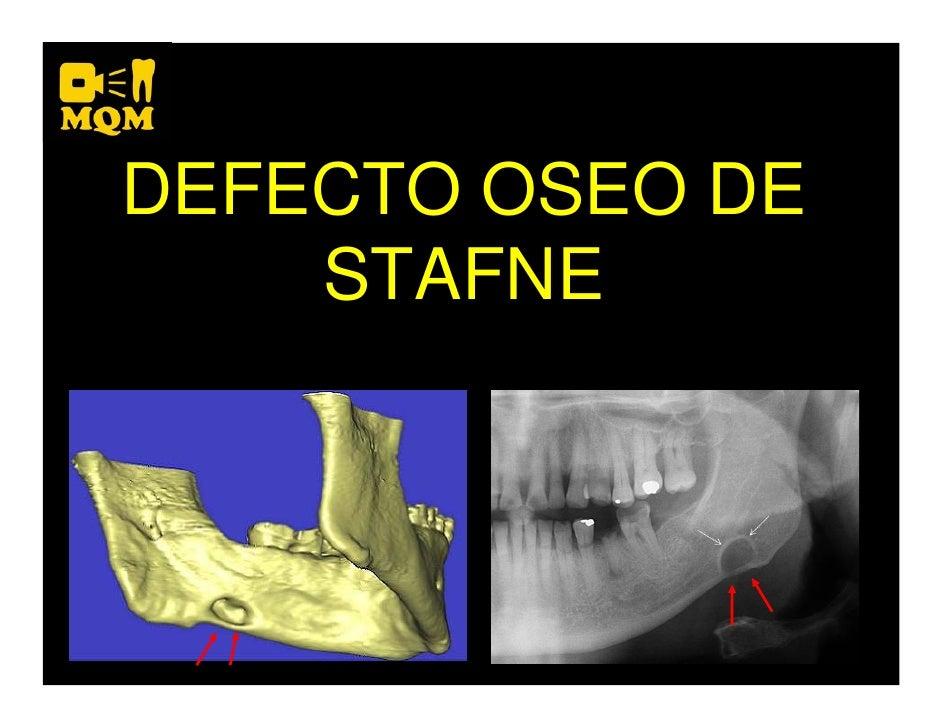 Defecto Oseo de Stafne
