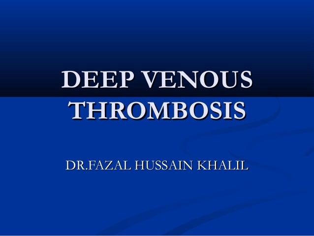 Dvt Deep Venous Thrombosis